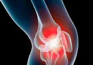 Гонартроз коленного сустава это