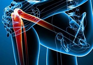 Изображение - Чем отличается артрит от артроза голеностопного сустава 1-38
