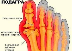 Изображение - Снять воспаление сустава при подагре 1-5