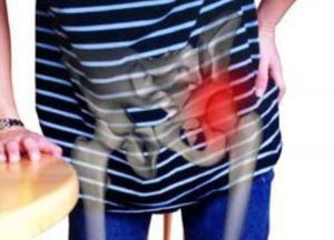 как лечить коксартроз тазобедренного сустава без операции