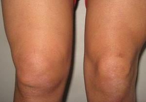 Изображение - Где скапливается жидкость в коленном суставе 1-9
