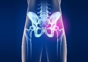 Как болит тазобедренный сустав при артрите thumbnail