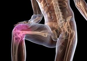 Изображение - Болезнь бурсит коленного сустава 2-18
