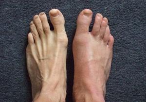 Изображение - Снять воспаление сустава при подагре 2-3