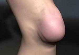 Изображение - Болезнь бурсит коленного сустава 3-19