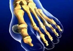 Изображение - Снять воспаление сустава при подагре 3-4