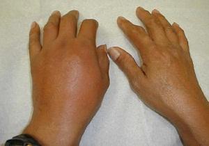 Изображение - Снять воспаление сустава при подагре 4-4