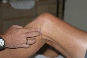 Изображение - Как вылечить мениск коленного сустава 5-9