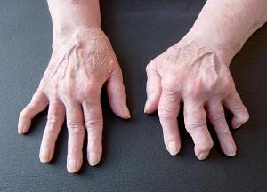 методы лечения артрита пальцев рук