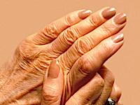 Как вылечить артрит тазобедренного сустава thumbnail