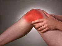 Изображение - Снять воспаление сустава при подагре artroz-kolennogo-sustava-3