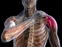 Изображение - Киста бейкера коленного сустава лечение в домашних bursit-plechevogo-sustava