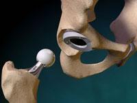 Изображение - Желатином вылечила суставы endoprotezirovanie