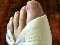 Изображение - Причина появления жидкости в коленном суставе lechenie-podagry-1