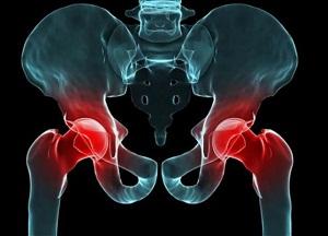 как лечить артрит тазобедренного сустава
