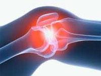 Изображение - Как вылечить мениск коленного сустава sinovit-kolennogo-sustava