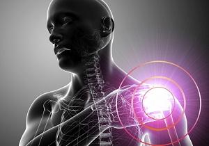 Изображение - Защемление плечевого сустава 1-27