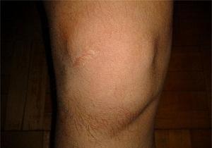 Изображение - Опух сустав колена что делать 1-30