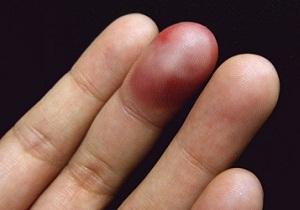 как отличить перелом пальца от ушиба