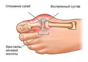 Изображение - Соли в суставах пальцев ног 1-60