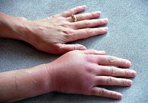 Изображение - Опухают суставы кистей рук лечение 1-66