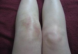 Изображение - Опух сустав колена что делать 2-30