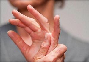 Изображение - Опухают суставы кистей рук лечение 2-63