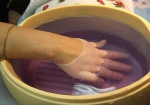 Изображение - Опухают суставы кистей рук лечение 4-59