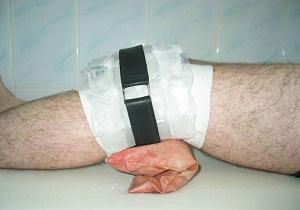 Изображение - Остеофиты коленного сустава как лечить 5-59