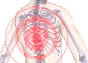 как лечить хондроз грудного отдела позвоночника