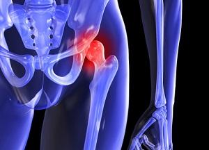 Изображение - Некроз бедренного сустава hip-pain