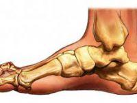 Изображение - Остеофиты коленного сустава как лечить osteoporoz