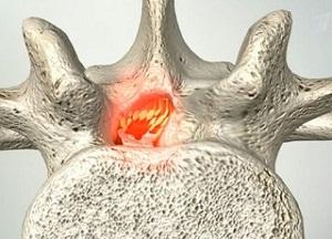 как лечить стеноз позвоночного канала