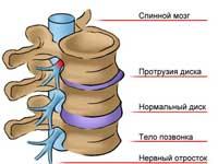 Изображение - Некроз бедренного сустава protruzii