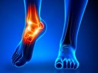Изображение - Остеофиты коленного сустава как лечить sinovit