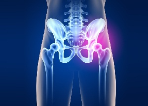 методы лечения коксартроза тазобедренного сустава 3 степени