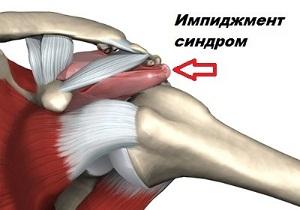 Изображение - Импиджмент левого плечевого сустава 1-15