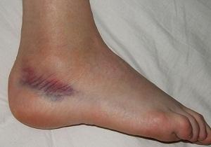 Изображение - Разрыв связок голеностопного сустава симптомы 1-41
