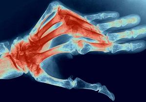 Изображение - Полиартрит болезнь суставов 2-16
