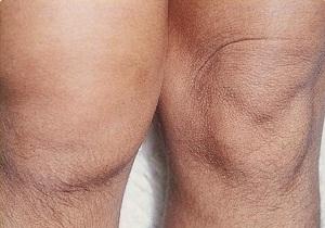 Изображение - Теносиновит лучезапястного сустава лечение 2-35