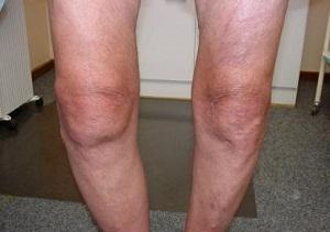 Как лечить опухший сустав на ноге