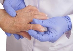 Изображение - Полиартрит болезнь суставов 5-7