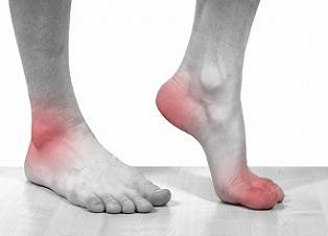 как лечить посттравматический артроз голеностопного сустава