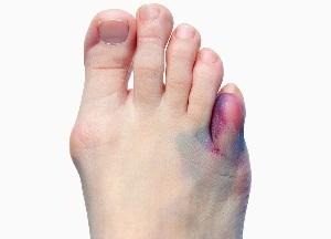 правила лечения перелома мизинца на ноге