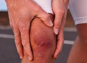 как лечить менископатию колена