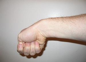 методы лечения теносиновита