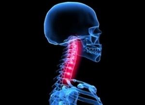 как лечить подвывих шейного позвонка