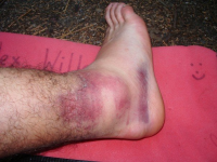 Изображение - Менископатия коленного сустава image248-e1339661790833