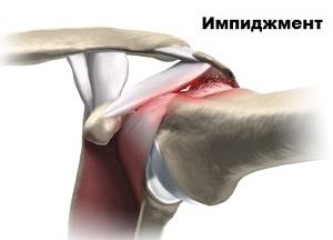 как лечить импиджмент синдром плечевого сустава
