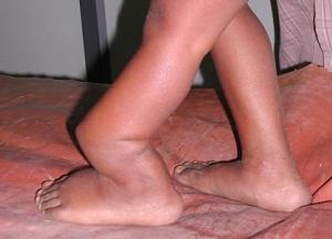 что такое ложный сустав после перелома